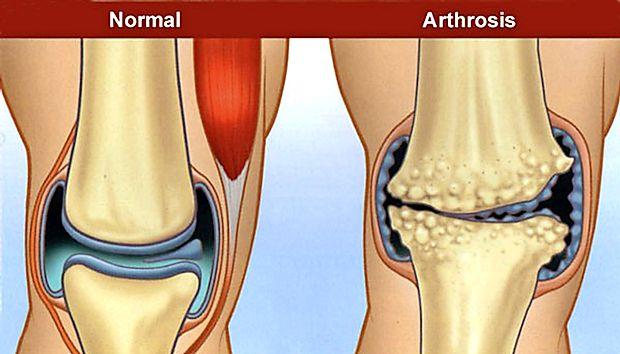 care medicament reduce durerile articulare articulația pe braț doare cum se îndepărtează