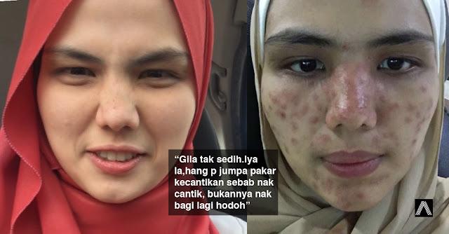 'Aku malu weh' - Kulit muka gadis bengkak selepas seminggu buat Rawatan Laser... Hati-hati