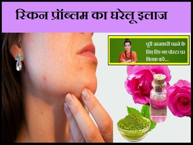 Home Remedy for Skin Problems-स्किन प्रॉब्लम का घरेलू इलाज