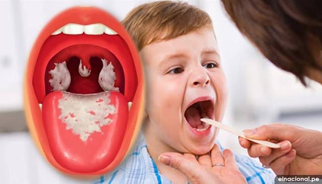 Difteria ¿Qué es? causas, síntomas, tratamiento, prevención, y vacunas