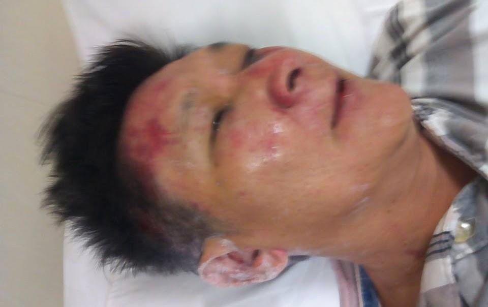 Vietnamese police obstruct, assault journalist Trương Minh Đức