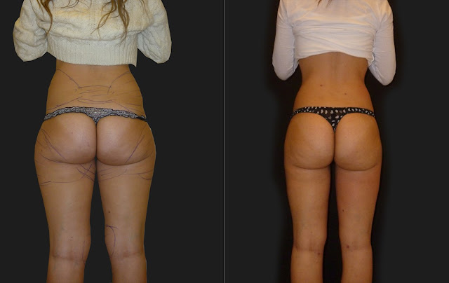 How To Lose Fat From Head – Hips and Liver Full Guide.