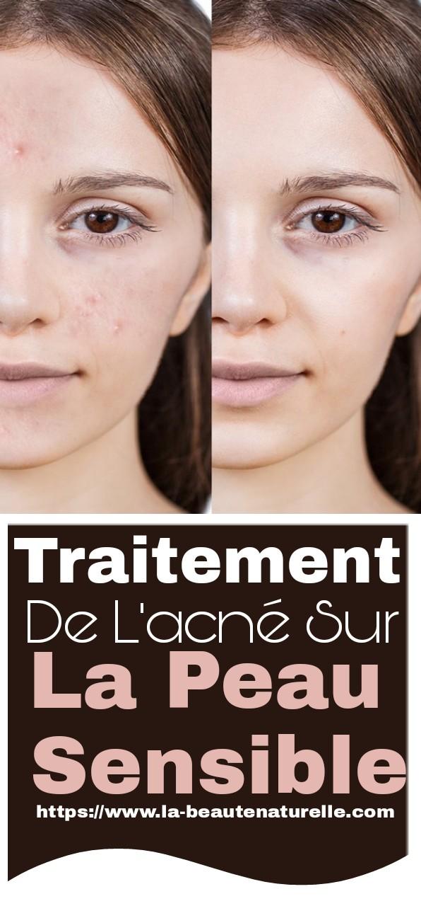 Traitement de l'acné sur la peau sensible