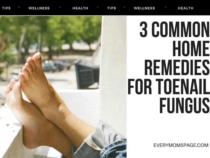 3 Common Home Remedies for Toenail Fungus