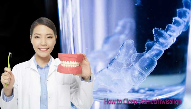 How to Clean Stained Invisalign?
