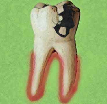 alveolitis dental, extraccion muela, extraccion dental, dolor extraccion, me duele muela