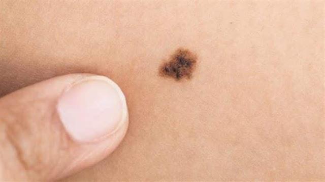 الحسنة الموجودة في الجسم قد تكون مؤشر لاصابتك بسرطان الجلد