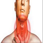 throat in spanish