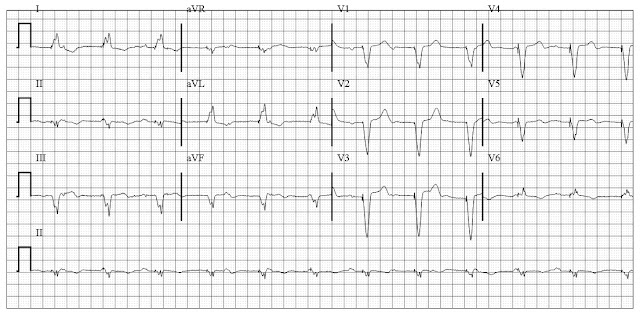 Sinus rhythm with VVI pacing (from right ventricle) with underlying complete heart block