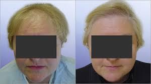 saç ekimi öncesi ve sonrası foto 24