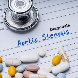 Stenosis aorta terjadi ketika katup aorta tidak terbuka sepenuhnya dan semakin sulit untuk memompa darah ke aorta.