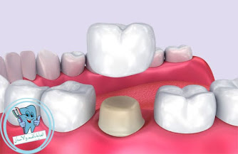 تغليف الاسنان بالسيراميك - كيفية  تغليف الاسنان بالسيراميك - كيف  تغليف الاسنان بالسيراميك - عيوب  تغليف الاسنان بالسيراميك - مميزات  تغليف الاسنان بالسيراميك