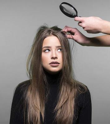 adrak ke fayde for hair