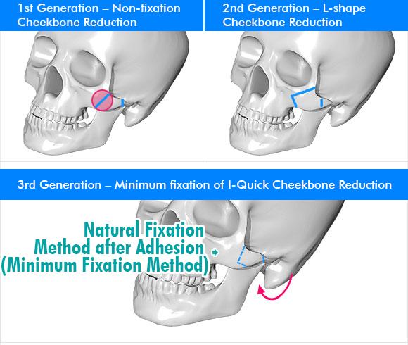 짱이뻐! - Korean Face Contouring - Cheekbone Reduction