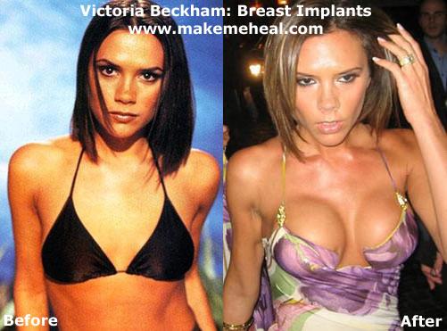 dating fake breasts