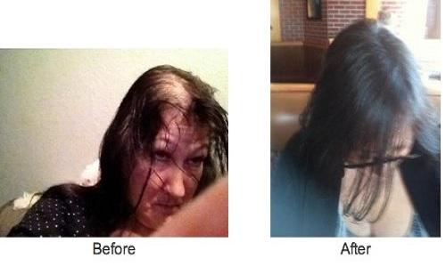 Fotos de antes y después.