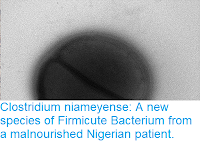 https://sciencythoughts.blogspot.com/2018/07/clostridium-niameyense-new-species-of.html