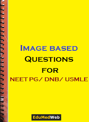 PDF] Image Based Questions For NEET PG, AIIMS PG & USMLE