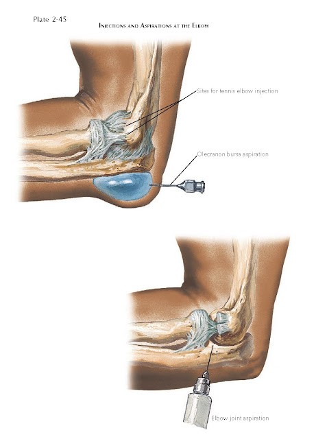 COMMON ELBOW INJECTIONS AND BASIC REHABILITATION