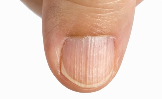 sköra naglar brist