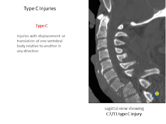 Type C AO Classification Cervical Spine Injries