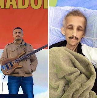Ölüm orucu eylemine 323'üncü gününde ara veren Grup Yorum üyesi İbrahim Gökçek'in yoğun bakımda devam eden tedavisinin bir ay süreceği açıklandı.