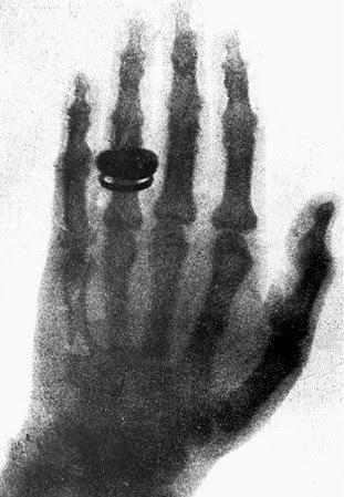 descobertas históricas, primeiro raio-x da história, descobertas da medicina, descobertas da história, grandes descobertas