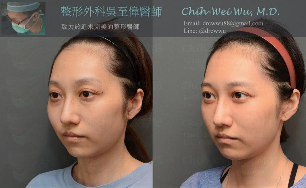 自體脂肪移植調整下臉部對稱性與下巴弧度