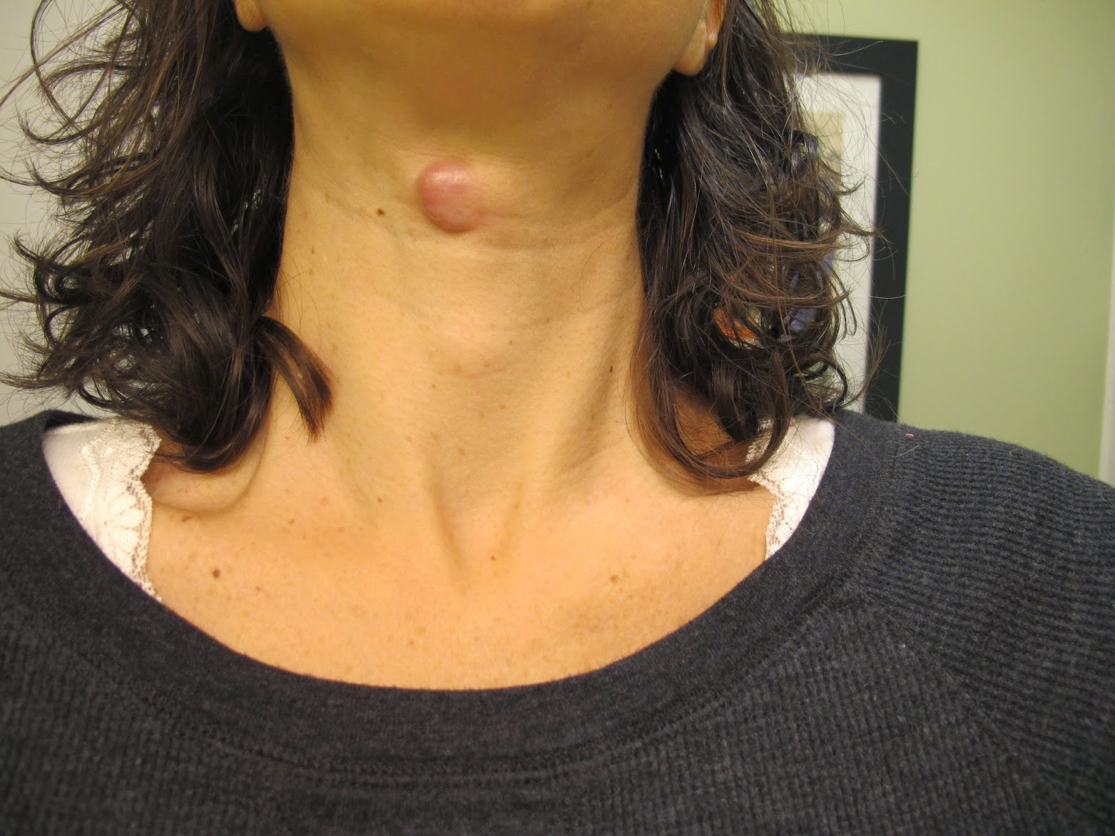 Linguine or Lo Mein Thyroglossal Duct Cyst  Sistrunk Procedure