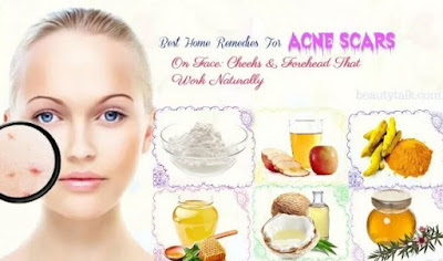 How To Fade Acne Scars - Home Remedies And Natural Treatments
