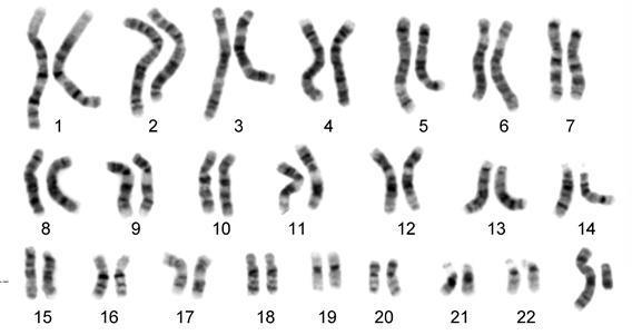 Gambar  . Struktur kromosom manusia