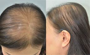 Hair loss in causes women
