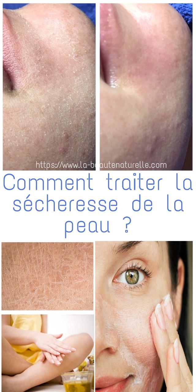 Comment traiter la sécheresse de la peau ?