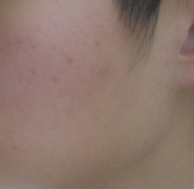 使用療法後,暗瘡消失了