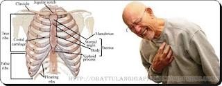 Bagaimana Cara Mengobati Patah Tulang Rusuk