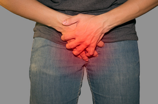 Penyakit BPH atau Benign Prostatic Hyperplasia Pada Manusia Pengertian BPH atau Benign Prostatic Hyperplasia BPH atau Benign Prostatic Hyperplasia (BPH) atau pembesaran prostat jinak adalah suatu kondisi yang menyebabkan kelenjar prostat mengalami pembengkakan, namun tidak bersifat kanker. Kelenjar prostat memiliki fungsi untuk memproduksi air mani dan terletak pada rongga pinggul antara kandung kemih dan penis. Karena kelenjar prostat hanya dimiliki oleh pria, maka tentu saja seluruh penderita BPH adalah pria. Umumnya pria yang terkana kondisi ini berusia di atas 50 tahun.  Gejala BPH atau Benign Prostatic Hyperplasia Berikut ini gejala-gejala yang biasanya dirasakan oleh penderita pembesaran prostat jinak (BPH) : Selalu ingin berkemih, terutama pada malam hari Inkontinensia urine atau beser Sulit menguluarkan urina Mengejan pada waktu berkemih Aliran urine tersendat-sendat Mengeluarkan urine yang disertai darah Merasa tidak tuntas setelah berkemih Munculnya gejala-gejala tersebut disebabkan oleh tekanan pada kandung kemih dan uretra ketika kelenjar prostat mengalami pembesaran.  Penyebab BPH atau Benign Prostatic Hyperplasia Penyebab pembesaran prostat jinak (BPH) masih belum diketahui, namun diperkirakan kondisi ini terjadi karena adanya perubahan pada kadar hormon seksual akibat proses penuaan. Pada sistem kemih pria terdapat sebuah saluran yang berfungsi membuang urine keluar dari tubuh melalui penis, atau lebih dikenal sebagai uretra. Dan jalur lintas uretra ini secara kebetulan melewati kelenjar prostat.  Jika terjadi pembesaran pada kelenjar prostat, maka secara bertahap akan mempersempit uretra dan pada akhirnya aliran urine mengalami penyumbatan. Penyumbatan ini akan membuat otot-otot pada kandung kemih membesar dan lebih kuat untuk mendorong urine keluar. Beberapa faktor yang dapat meningkatkan risiko seseorang terkenan BPH adalah : Kurang berolahraga dan obesitas Faktor penuaan Menderita penyakit jantung atau diabetes Efek samping obat-obatan penghambat 