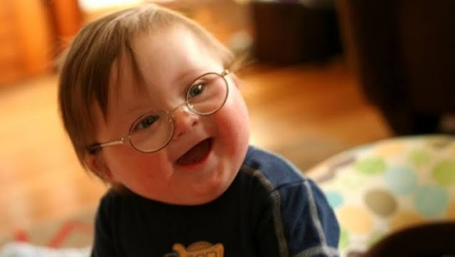 Engelli Emeklilik Şartları Nelerdir Engelli Raporu Nasıl Alınır
