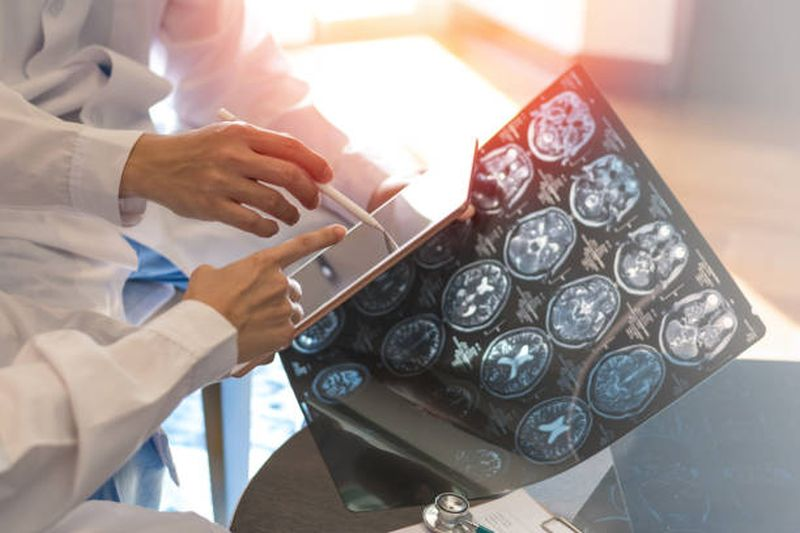 Esclerosis Múltiple: enfermedad degenerativa que está afectando a los adultos jóvenes