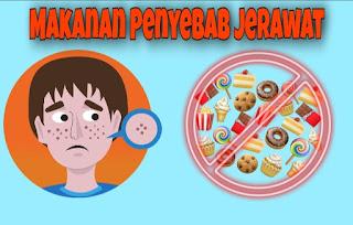 Hindari Makanan penyebab jerawat