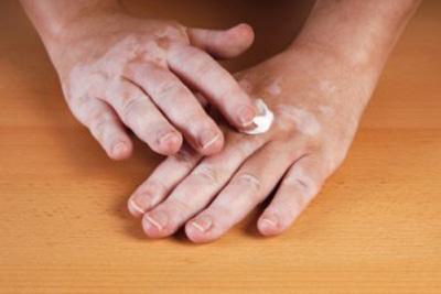 Vitiligo y la inflamación cutánea