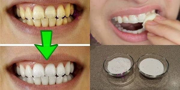 whiten-yellow-teeth-less-2-minutes