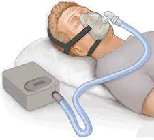 CPAP (continuous positive airway pressure) device is the highly frequent healing for sleep apnea. It utilized gentle pressure of air in order to maintain the air passage open. A mask is fitted on the mouth or nose or just on the nose, which helps in delivering the air.