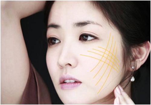 Thẩm mỹ da mặt bằng công nghệ Thermage