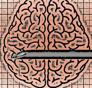 cum functioneaza implanturile cerebrale contra depresiei