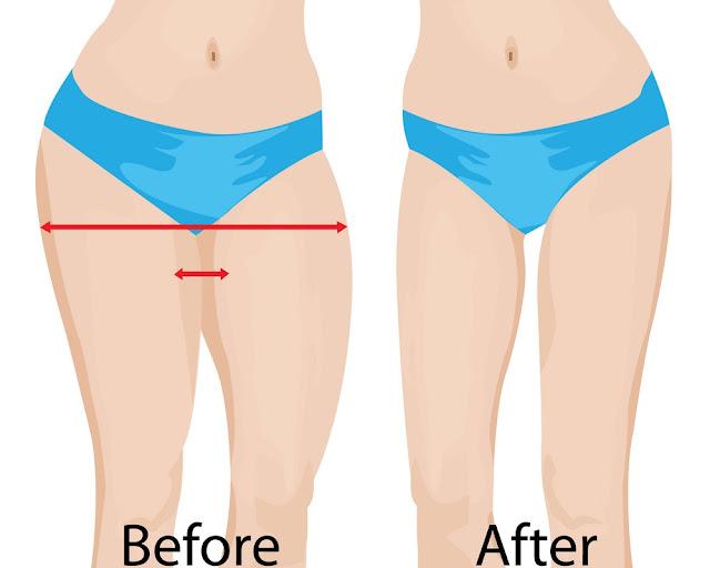 Comment brûler la graisse sur les cuisses et les fesses rapidement: Exercices faciles à faire