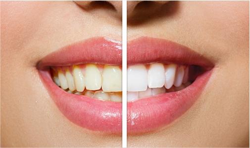 ¡Garantizado! ¡blanquea tus dientes amarillos en menos de 2 minutos!