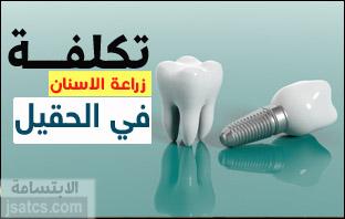 اسعار زراعة الأسنان في الحقيل