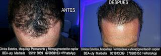 MICROPIGMENTACIÓN CAPILAR MARBELLA CLÍNICA ESTÉTICA, MICROPIGMENTACIÓN CAPILAR, MAQUILLAJE PERMANENTE facial con  los mejores especialistas en micropigmentación y maquillaje permanente en Marbella y Málaga