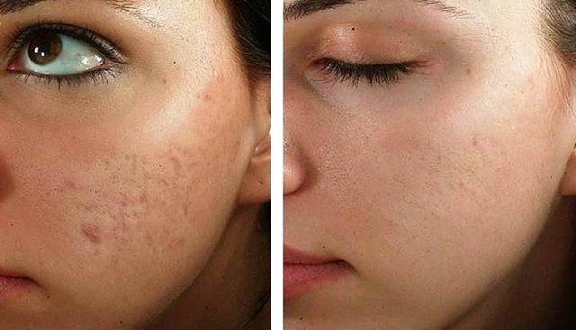 how to rejuvenate face without surgery microneedling skin fillers