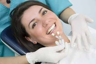 Are You Considering Dental Veneers?